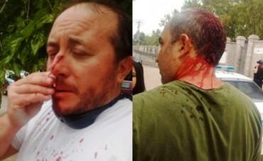 Roberto Macho de ATE fue herido durante una protesta